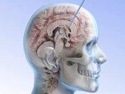Brainsafe