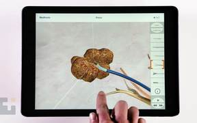 Interactive 3D Medical Animation