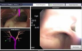 ENB With GenCut Core Biopsy System