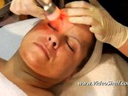 Crystal-Free Microdermabrasion Techniques DVD