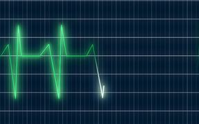 ECG Heartrate Graph Animation